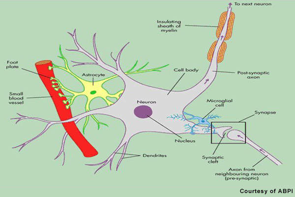 Loss of the protective myelin sheath
