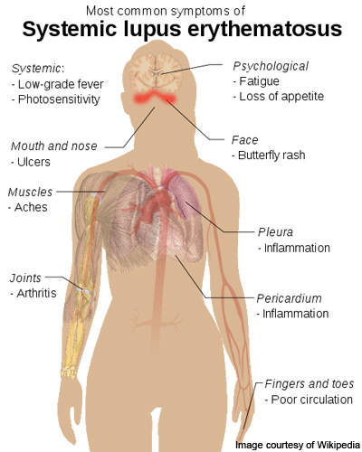 The symptoms of Systemic Lupus Erythematosus.