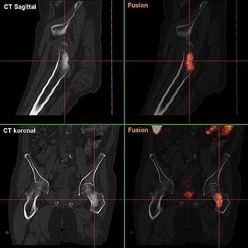 Bone metastasis in prostate cancer.