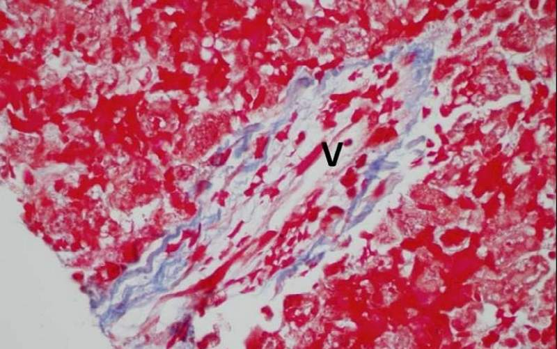 Hepatic veno-occlusive disease (VOD) is a fatal form of hepatic injury. Image courtesy of NIH.