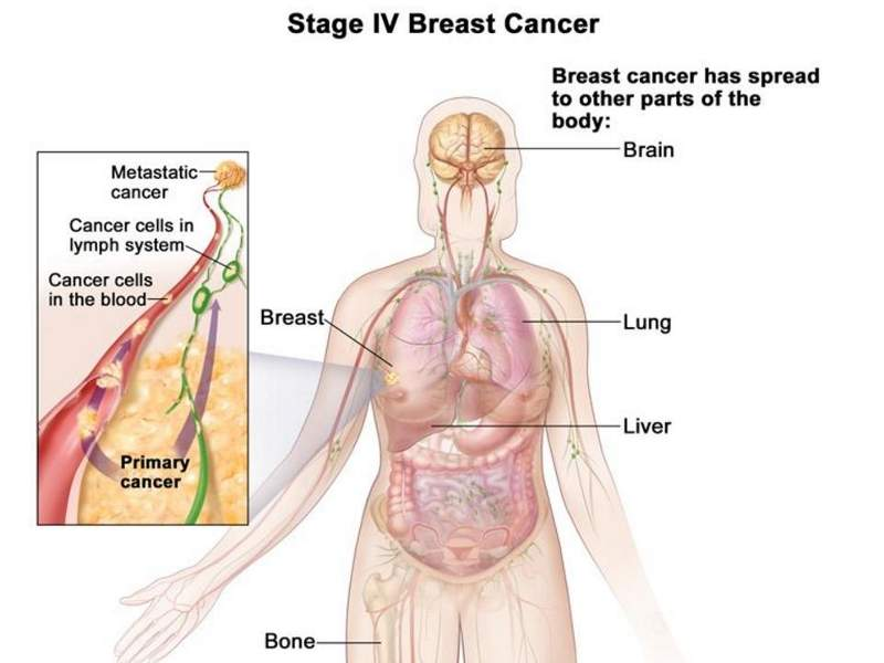Advanced stages of breast cancer include symptoms such as bone pain and skin ulcers. Image courtesy of National Cancer Institute (https://www.cancer.gov).
