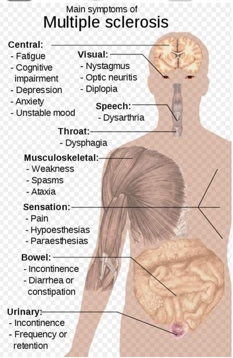 Multiple sclerosis is associated with symptoms such as fatigue, blurred vision, and numbness in different parts of the body.