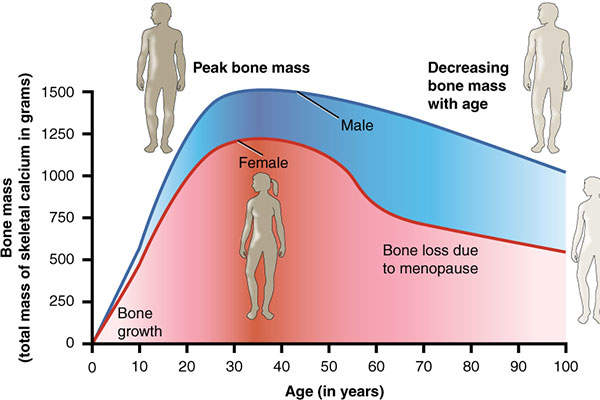 Postmenopausal osteoporosis is more commonly found in women over the age of 50. Image: courtesy of Anatomy and Physiology, Connexions.