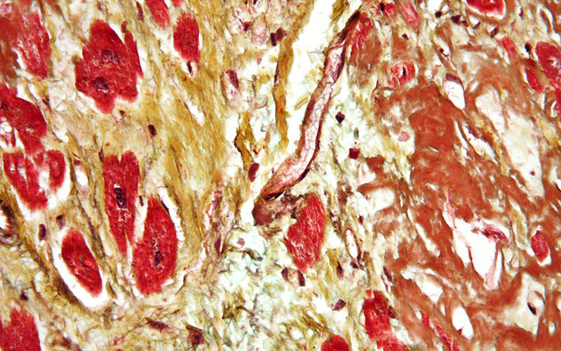 LAL deficiency can lead to fibrosis. Image courtesy of Nephron.