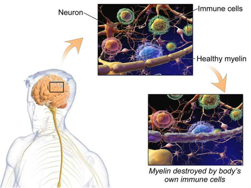 Multiple sclerosis is a chronic, often disabling neurological disorder caused by the damage of the myelin sheath that surrounds and protects the nerves cells. Image courtesy of BruceBlaus.