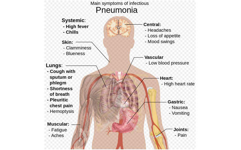 Pneumonia is an acute respiratory infection of lungs, in which the small air sacs called alveoli are filled with pus and fluids, making breathing painful.