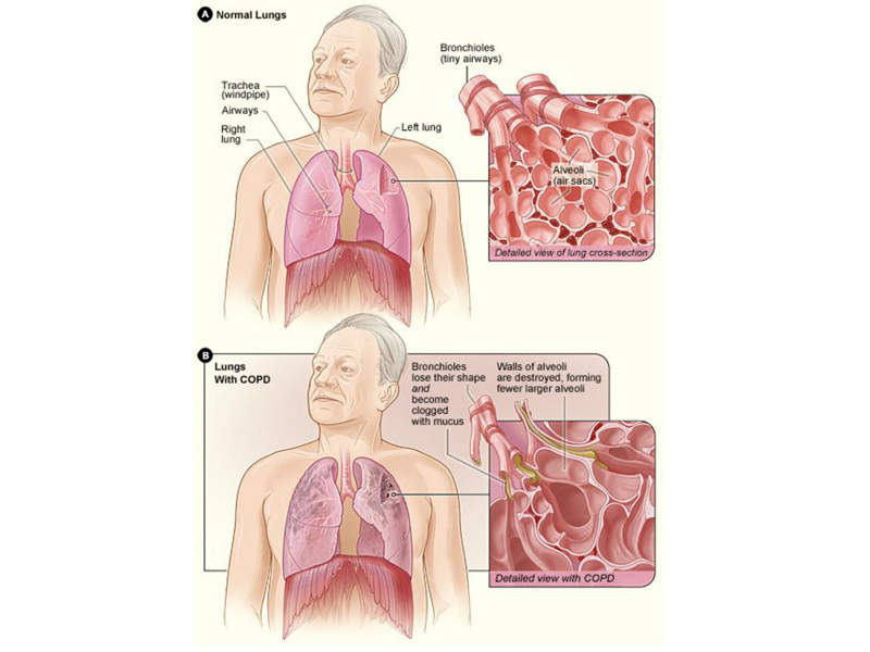 The walls of the airways of COPD patients become inflamed and lose their elastic quality. Image courtesy of National Institute of Health.