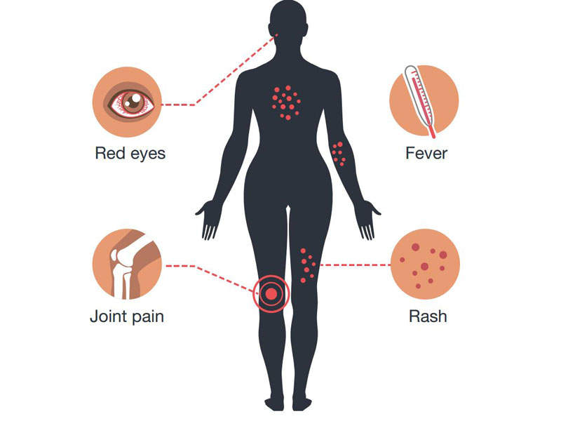 Zika virus Infection is associated with mild symptoms such as fever and rashes. Image courtesy of Centers for Disease Control and Prevention (CDC).