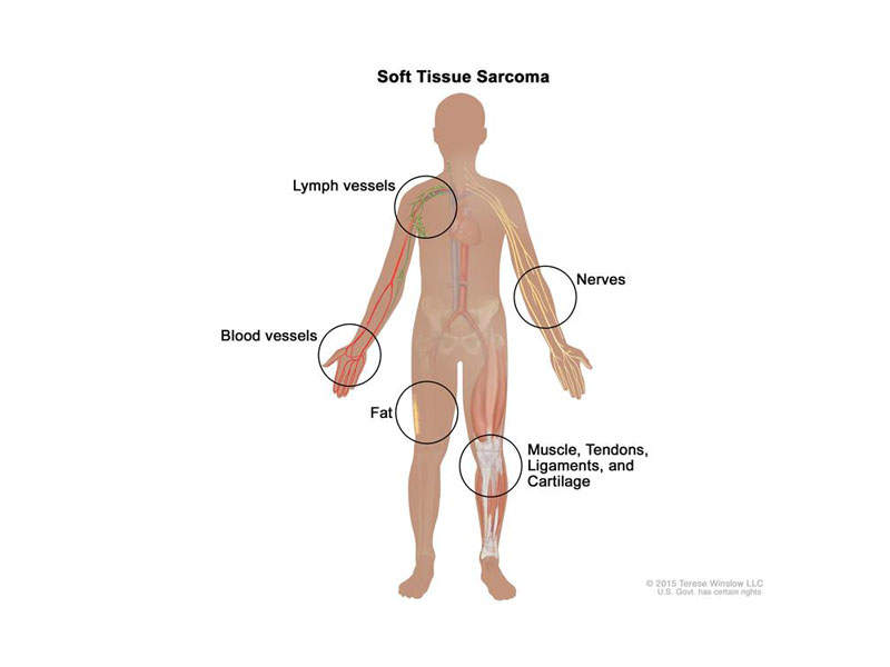 Lartruvo in combination with doxorubicin is indicated for the treatment of soft tissue sarcoma, a cancer of the connective tissue of the body. Image courtesy of U.S. National Library of Medicine.