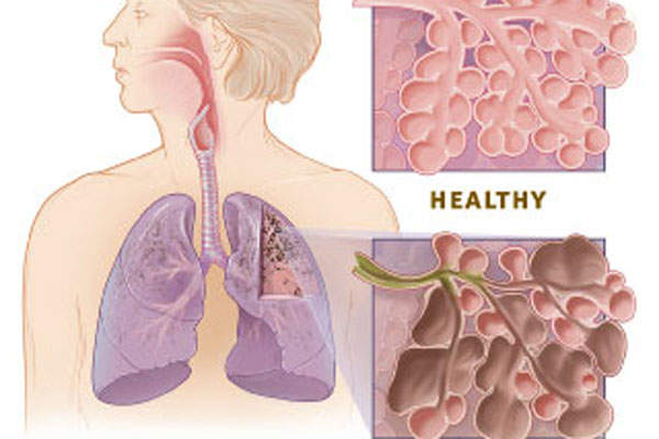 COPD is a lung disease that is characterised by difficulty to create an airflow for normal breathing.
