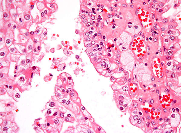 A high magnification micrograph of papillary renal cell carcinoma. Image courtesy of Nephron.