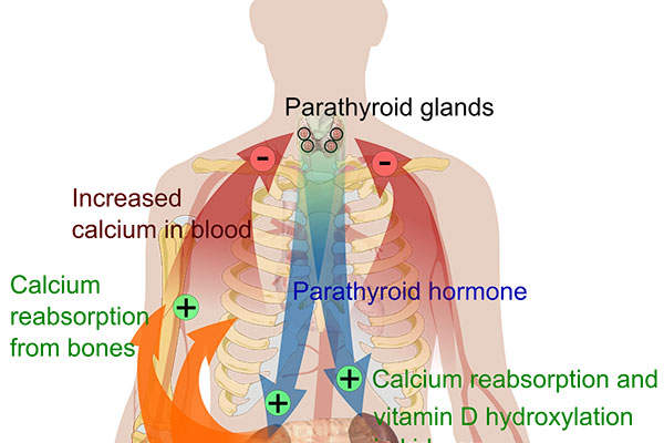 Hypoparathyroidism leads to low levels of calcium and high levels of phosphate in the blood.