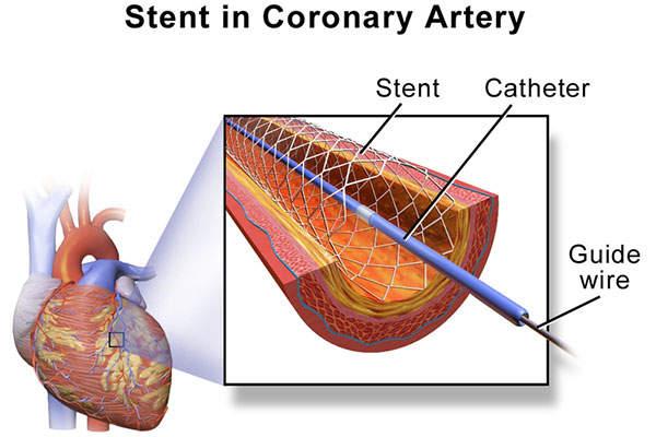 Coronary angioplasty treats narrowed arteries in patients with coronary heart diseases. Image: courtesy of Blausen.com