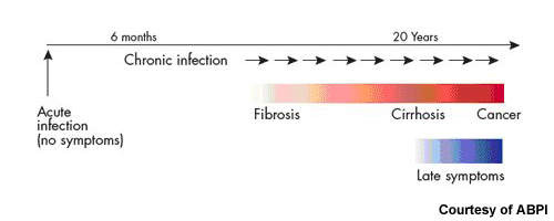 The course of a typical hepatitis C infection.