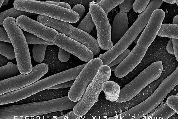 Escherichia coli (E.Coli) bacteria are the main cause of urinary tract infections (UTIs).