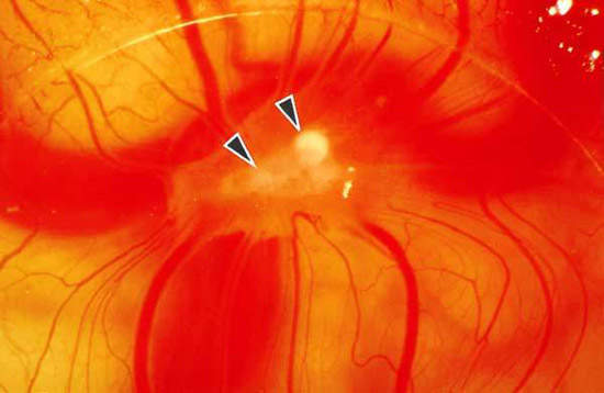 Tumour angiogenesis. (Source: ABPI)