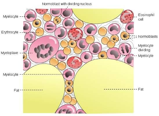 Multiple myeloma originates in the bone marrow.