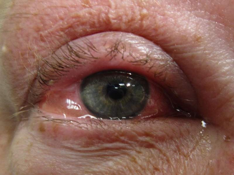 Dry eye disease is a condition in which the eye doesn't produce tears or tears evaporate too quickly, causing inflammation in the surface of the eye. Image courtesy of James Heilman, MD.