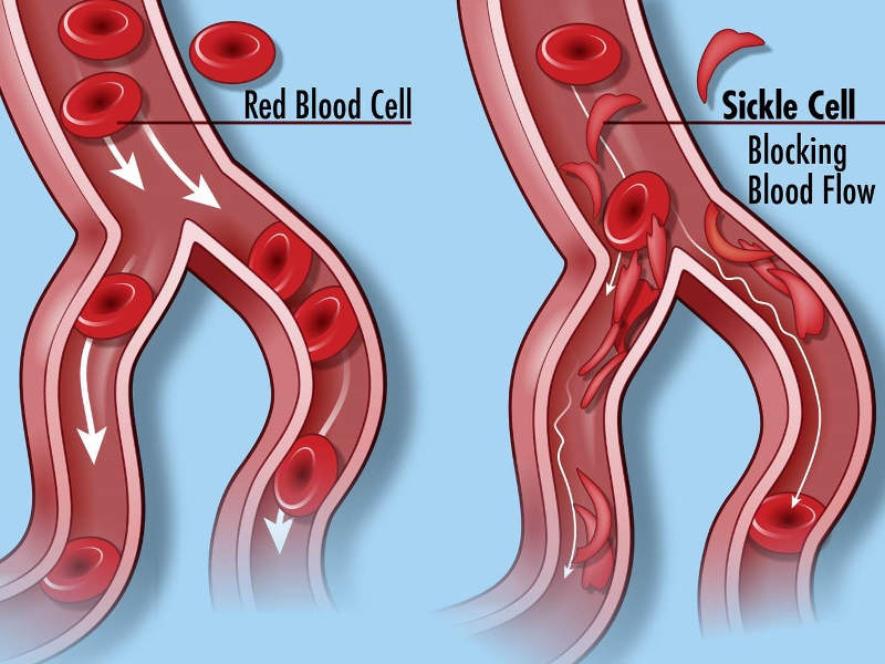 Sickle cell disease causes blockage in blood flow. Image courtesy of Darryl Leja, National Human Genome Research Institute (NHGRI).
