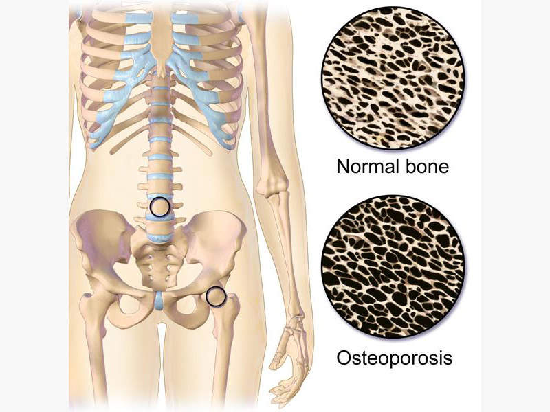 Calcium resorption from bones causes loss of bone mass and leads to fractures. Image courtesy of BruceBlaus.
