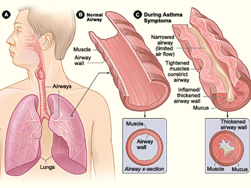 Asthma is a chronic lung disease associated with inflammation and narrowing of airways. Image courtesy of National Institute of Health.