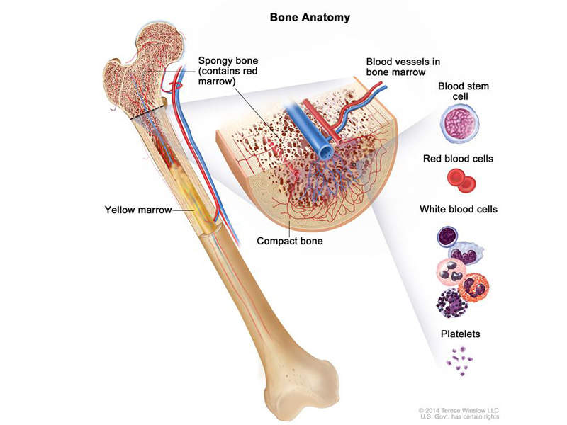 Chronic lymphocytic leukaemia affects blood and the bone marrow. Image courtesy of NIH.
