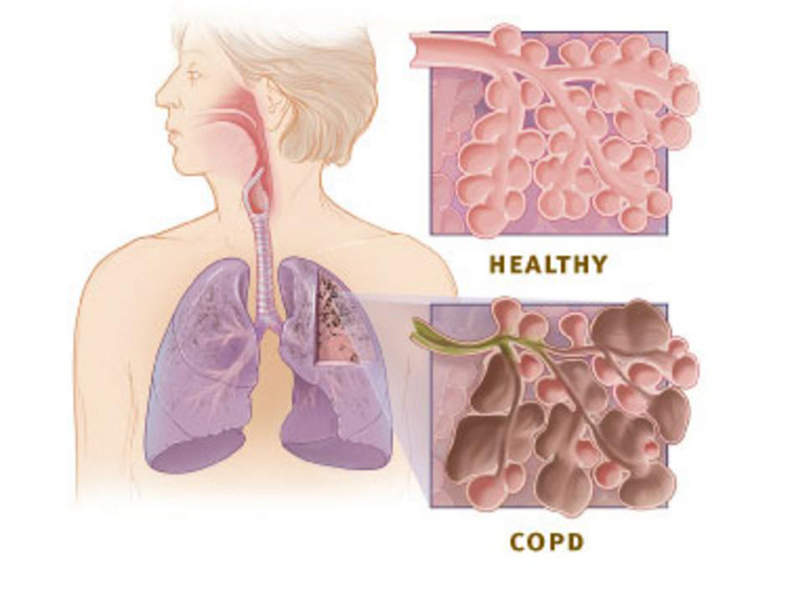 The airways of the lungs are blocked and make it harder to breathe out. Image courtesy of National Institute of Health.