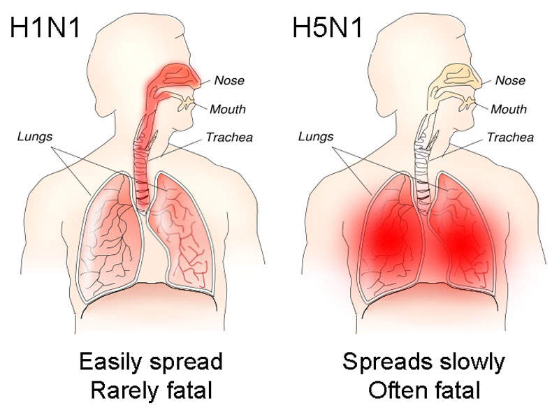Influenza is primarily caused by inhalation of airborne virus, which infects nose, throat and lungs.