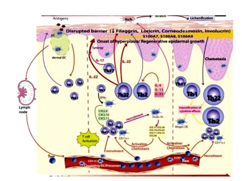 Dupixent blocks the intercellular signalling of IL-4 and IL-13, which are responsible for maintaining the immune response of Th2 cells.