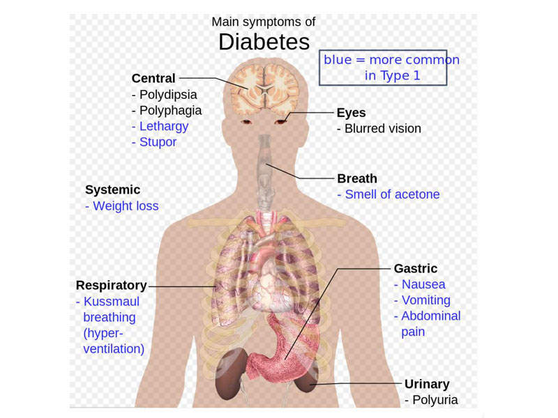 Type 2 diabetes is associated with symptoms such as frequent urination, unusual weight loss, fatigue, sores and increased hunger. Photo courtesy of Mikael Häggström via Wikipedia.