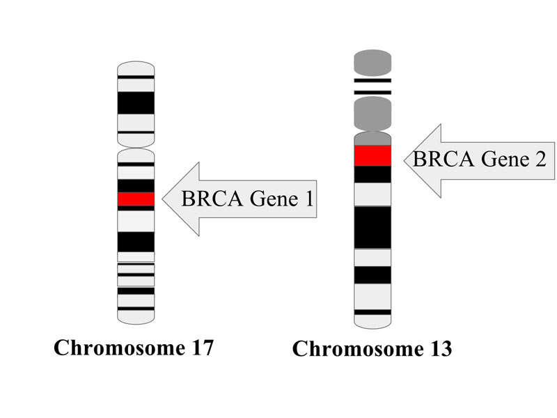 BRCA1 and BRCA2 mutation genes are the tumour suppressor proteins, which will help in repairing the damaged DNA. Image courtesy of Tessssa13.