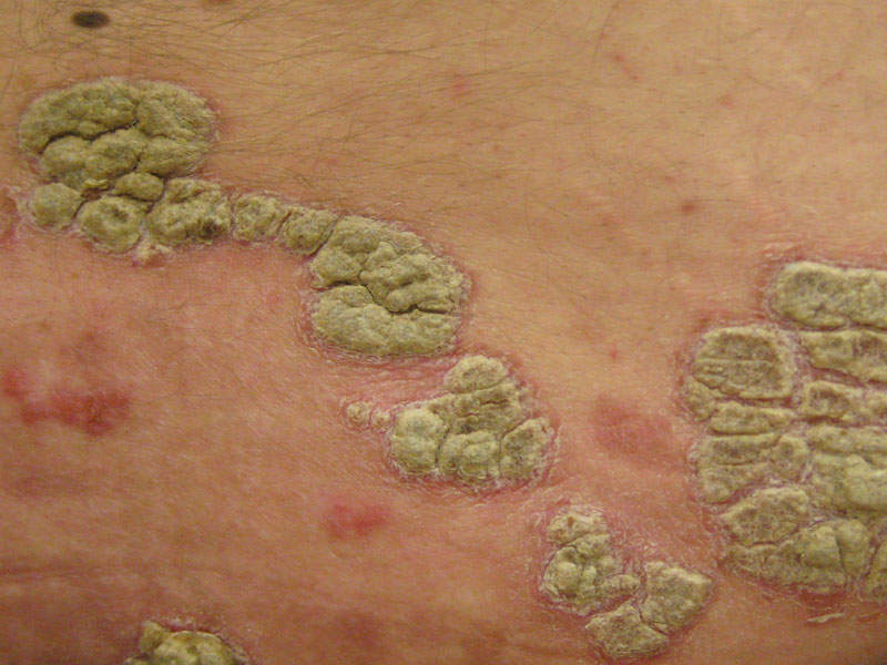 The plaques are itchy, painful and can crack and bleed. Image courtesy of James Heilman, MD.