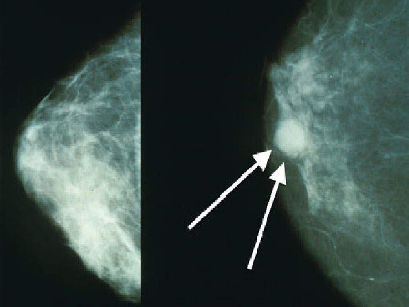 HER2-positive breast cancer is more aggressive and spreads faster than other types of breast cancer. Image courtesy of Bakerstmd.
