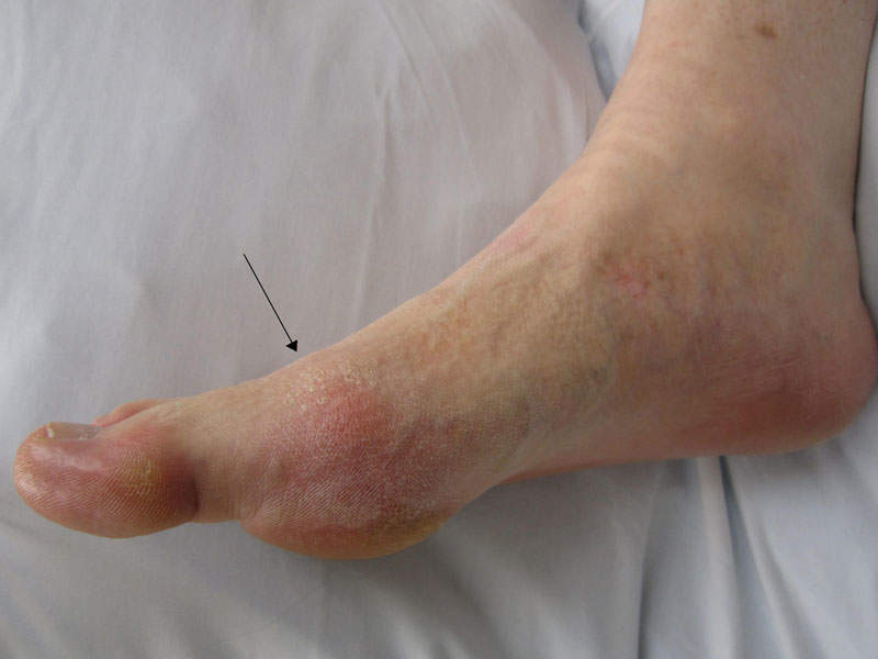 The fixed-dose combination of lesinurad and allopurinol targets hyperuricemia associated with uncontrolled gout. Image courtesy of James Heilman, MD.