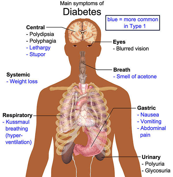Type II diabetes is characterised by high levels of sugar in the blood.