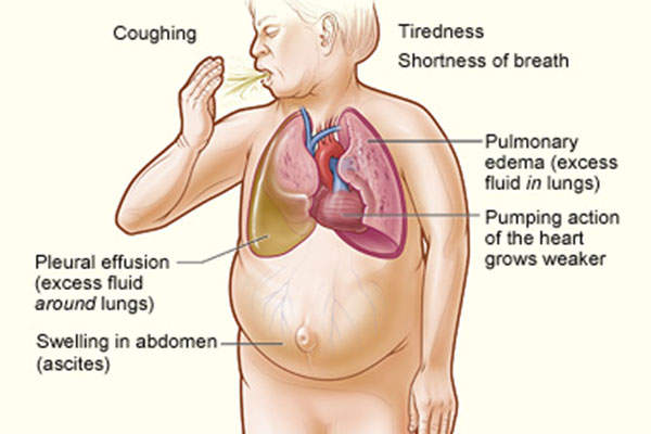 Common causes of heart failure include coronary heart disease and high blood pressure. Image is in the public domain.