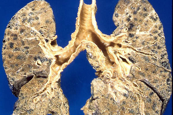 Emphysema is a kind of Chronic obstructive pulmonary disease (COPD) which mostly affects the upper lobes of lungs. Image: courtesy of Yale Rosen.