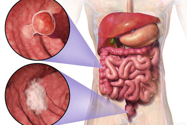 Colorectal cancer affects the colon and rectum in the large intestine.  Image: courtesy of Blausen Medical Communications.