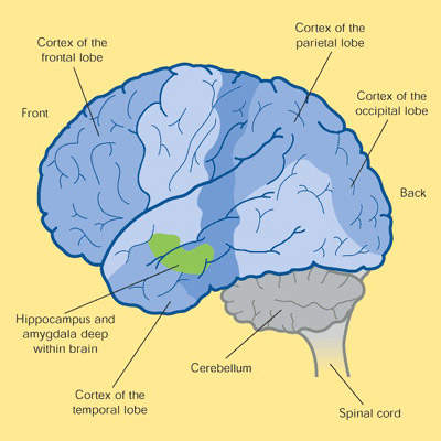 Cross-section of the human brain showing the regions affected in Alzheimer's disease (AD). Darker shaded areas, such as the cortex and hippocampus, are those most damaged in AD. (Source: ABPI)