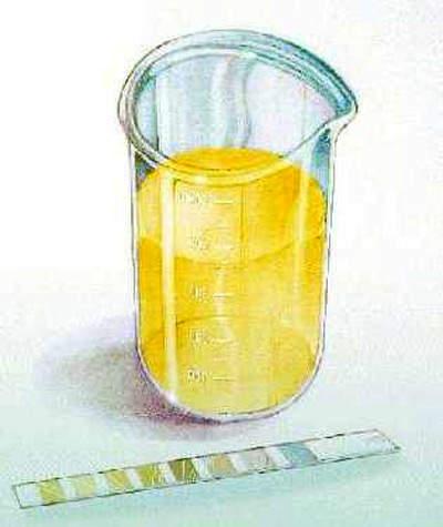Sample for urinalysis.