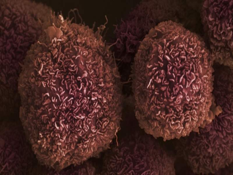March's top stories: Cancer Research UK's pancreatic cancer trials