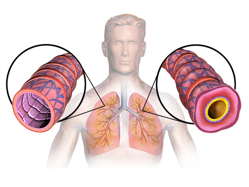 Asthma is a chronic respiratory disease. Image courtesy of BruceBlaus.