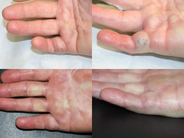 Dupuytren's contracture is a progressive condition that causes the fingers to bend back towards the palm. Image courtesy of Keith Denkler.