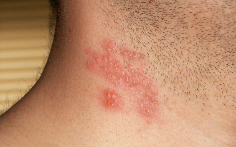 Shingles is a viral disease characterised by painful skin rash. Image courtesy of Gentgeen.