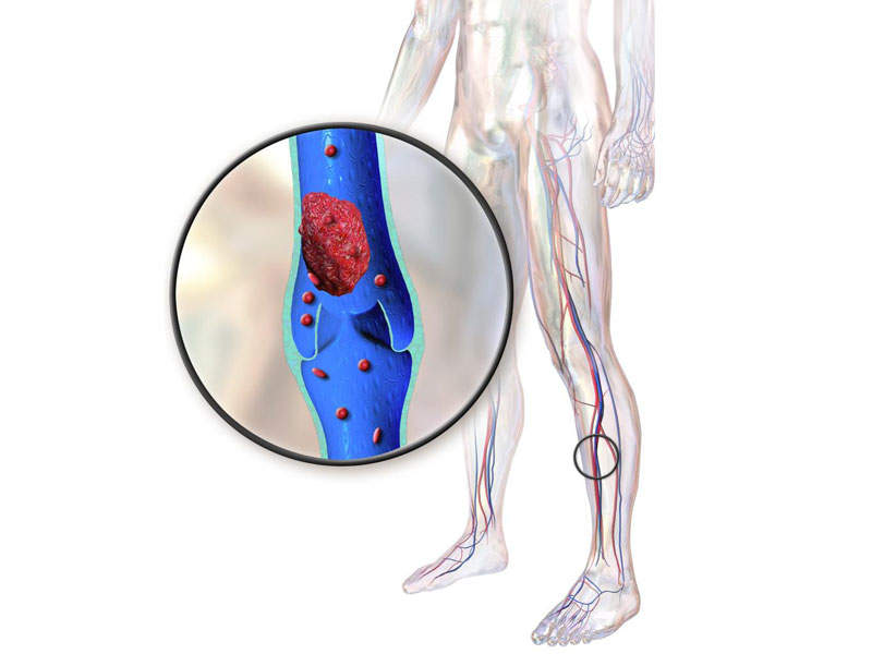 The second form of VTE, DVT is symptomised by a blood clot in the vein in the leg. Image courtesy of BruceBlaus.