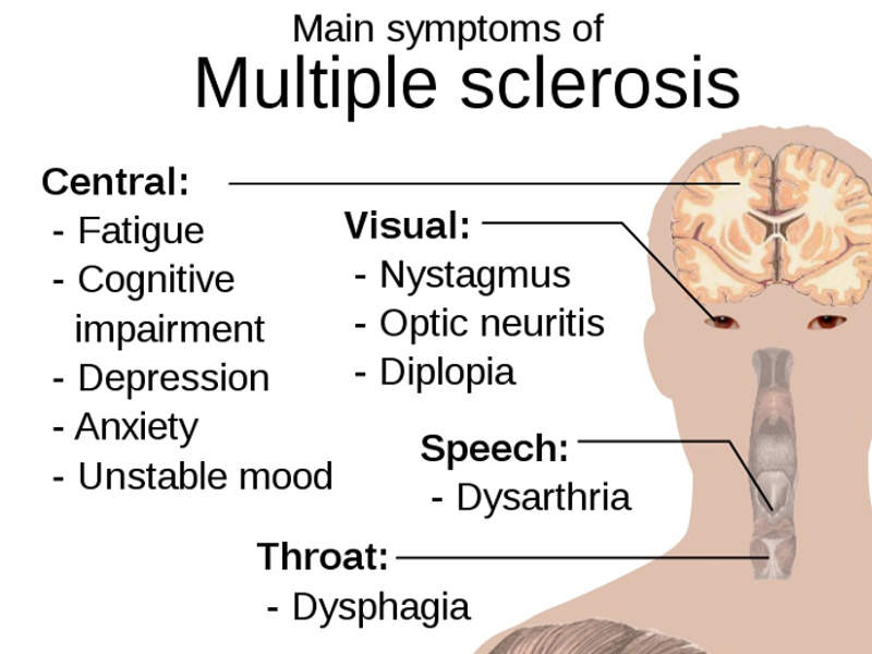 Symptoms of Multiple Sclerosis include fatigue, blurred vision and muscle stiffness.