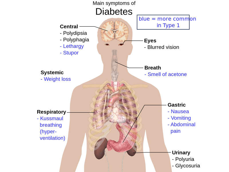 The symptoms of type 2 diabetes include frequent urination, constant appetite and excessive thirst. Image: courtesy of Mikael Häggström via Wikipedia.