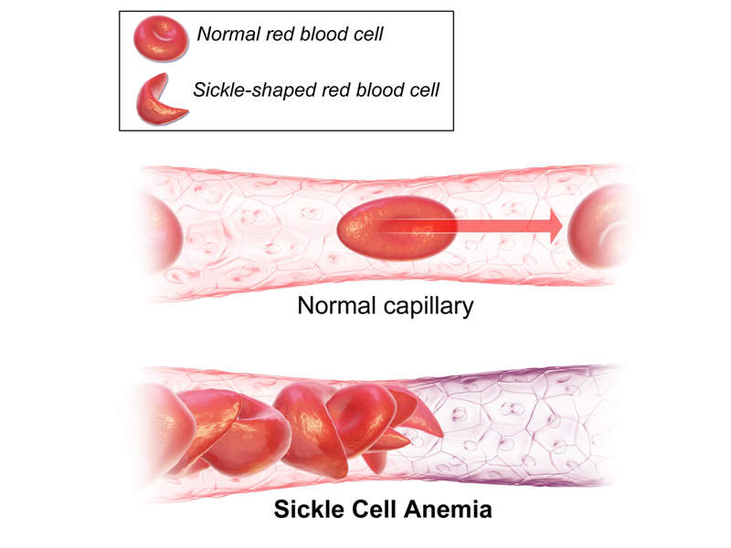 People with sickle cell disease have abnormal haemoglobin, called sickle haemoglobin, in their red blood cells. Image courtesy of BruceBlaus.