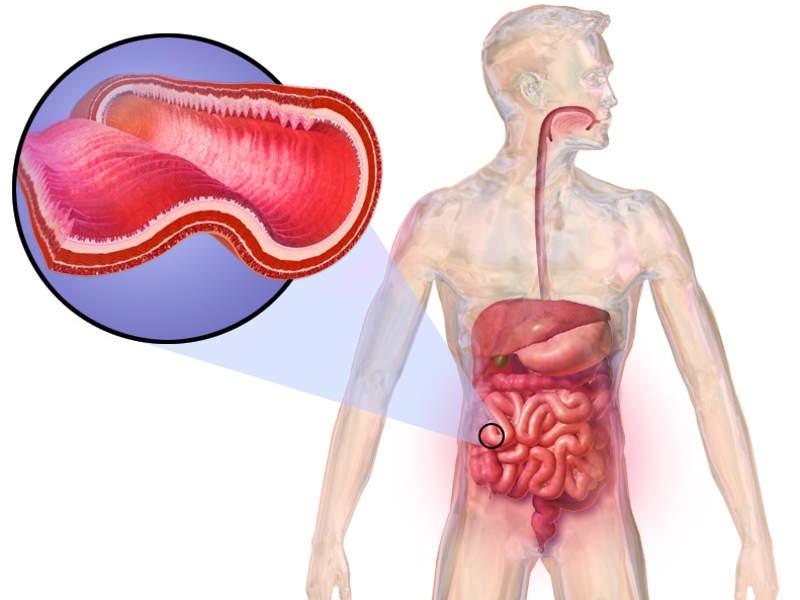 Crohn's disease is a prolonged inflammatory bowel disease. Credit: BruceBlaus.