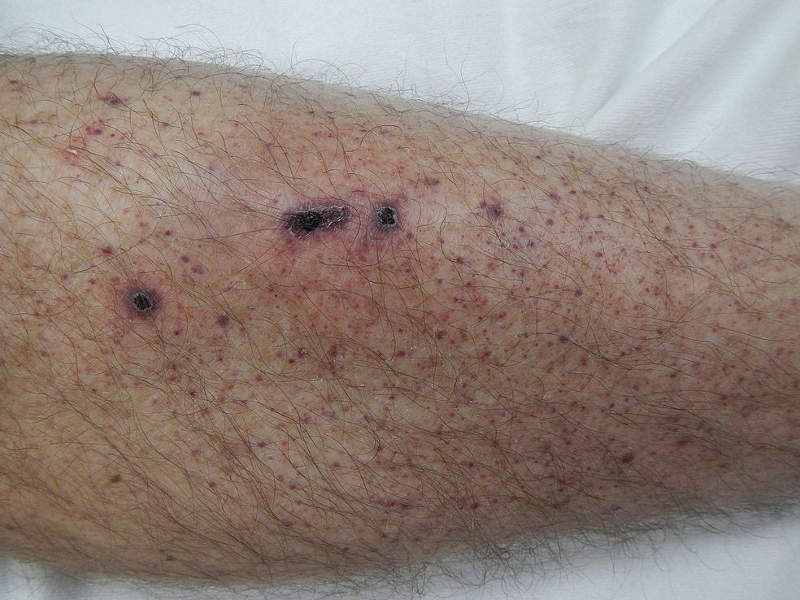 Patients with ITP suffer from unusual bruising, bleeding and fatigue due to low platelet counts. Image courtesy of James Heilman.